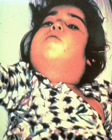 Child with Bullneck Diphtheria