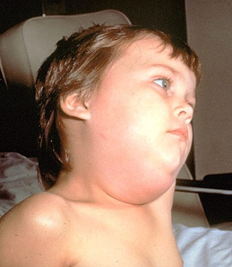 Boy with Mumps