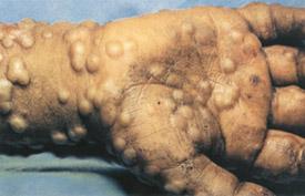 chickenpox rash pictures #10