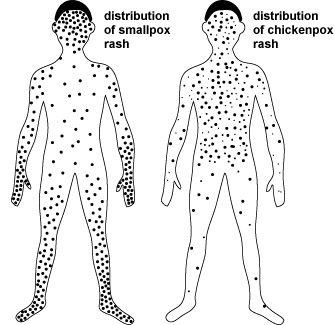 distribution of rash